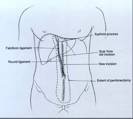Επιγαστρική περιτοναιοεκτομή