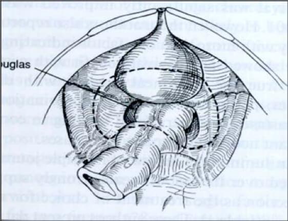κυτταρομειωτική χειρουργική - πυελική περιτοναιοεκτομή