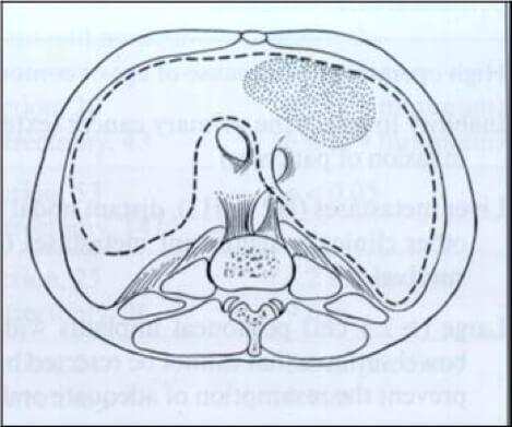 κυτταρομειωτική χειρουργική - υποδιαφραγματική περιτοναιοεκτομή